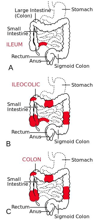 Difference Between Crohn's Disease and Ulcerative Colitis