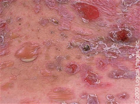 Serious Rashes Every Student and Clinician Should Know